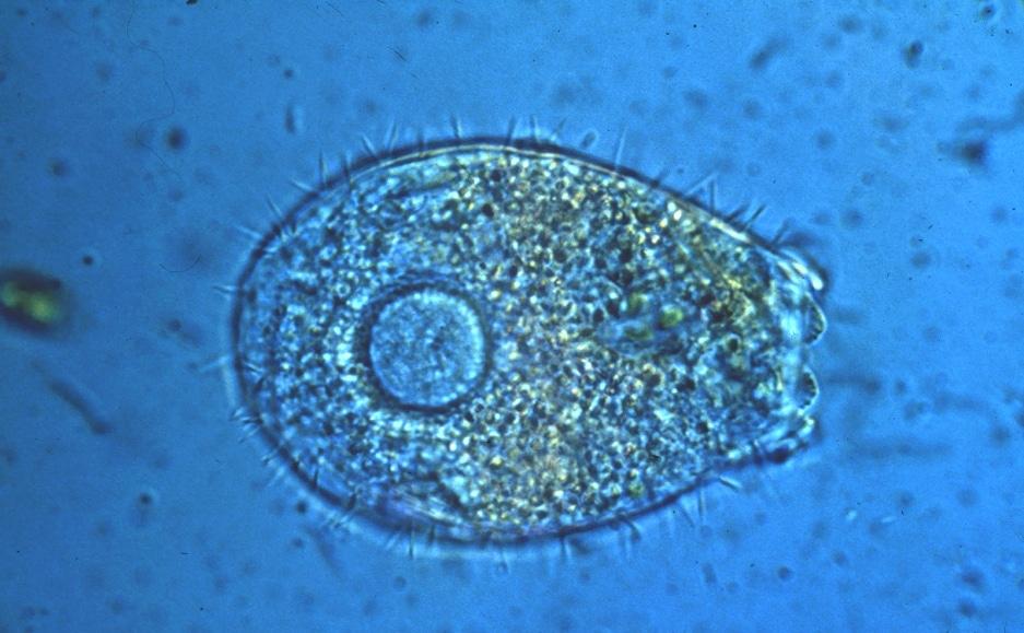 Mikroskop - Protozoen